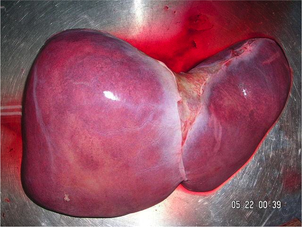 3D printed liver