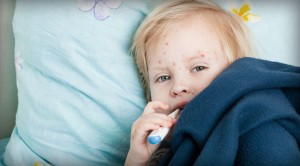 Assessing a Measles Outbreak in Your Neighborhood